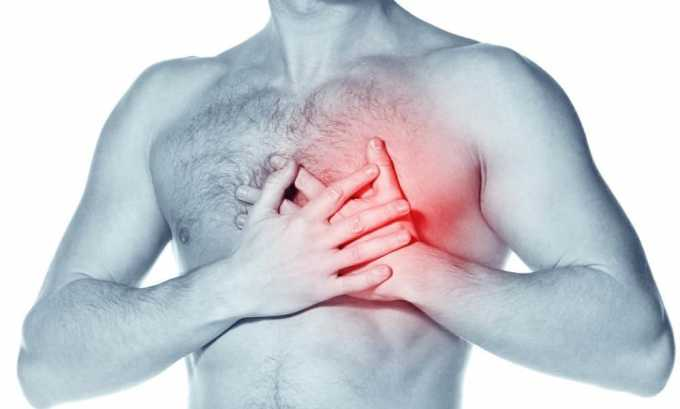 Боли в области сердца - симптом гипотиреоза