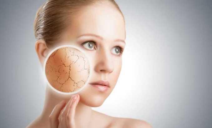 При гормональном дисбалансе пациент жалуется на сухость кожи