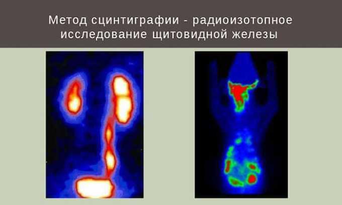 Чтобы выявить произошедшие изменения в размерах и структуре железы назначают и дополнительные исследования: компьютерную и магнитно-резонансную томографии, сцинтиграфию