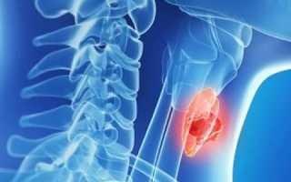 Причины возникновения гипофункции щитовидной железы