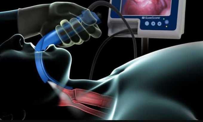 С помощью ларингоскопии у больного исследуют гортань и голосовые связки