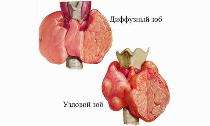 Повышенное содержание тироксина может привести к развитию диффузного зоба