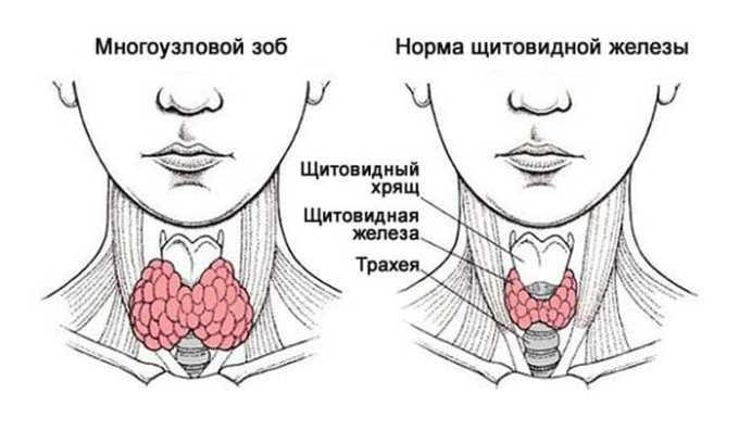 У больного гипотериозом может появиться узловой зоб