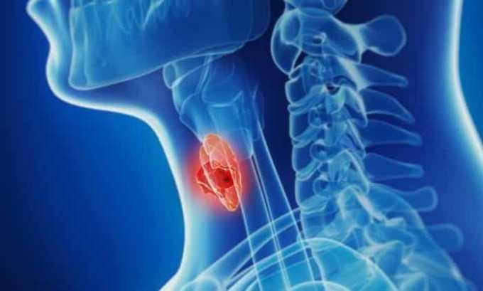 Увеличение щитовидной железы - основная причина появления кашля
