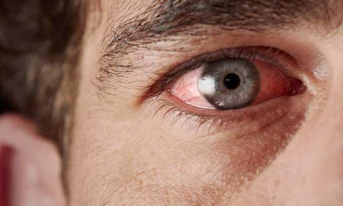 Для диагностики аутоиммунной поражении глаз назначается сцинтиграфия