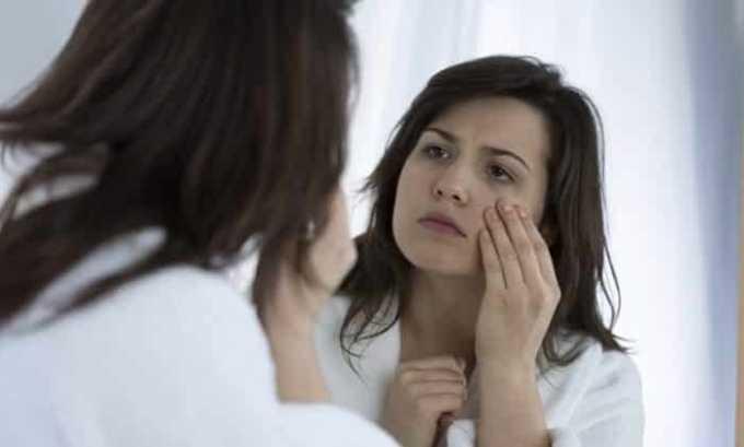 При развитии патологии щитовидки кожа теряет много влаги, что приводит к ее сухости и шелушению