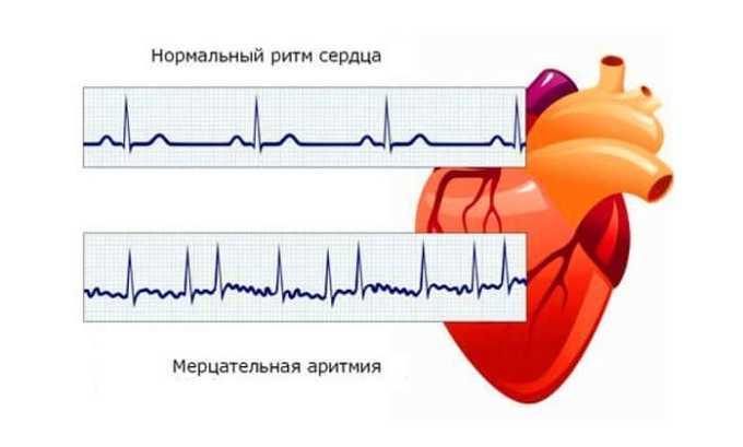 Нарушения сердечного ритма может быть показателем проблемы щитовидки