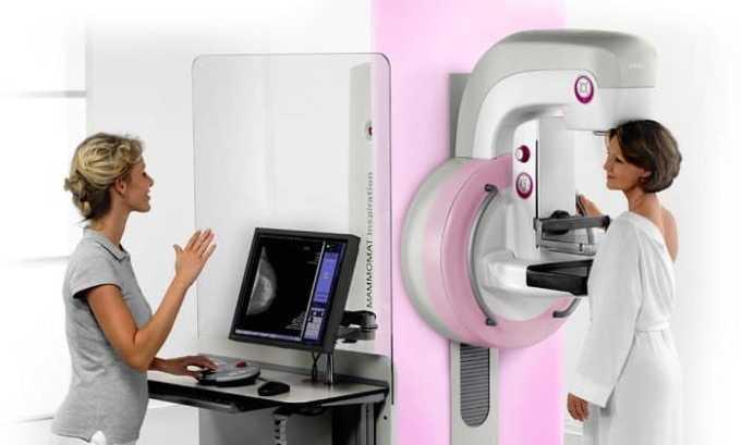 Спровоцировать патологию при беременности может радиационное облучение