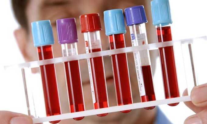 Предварительный диагноз устанавливается врачом-эндокринологом на основании анализа на ТТГ