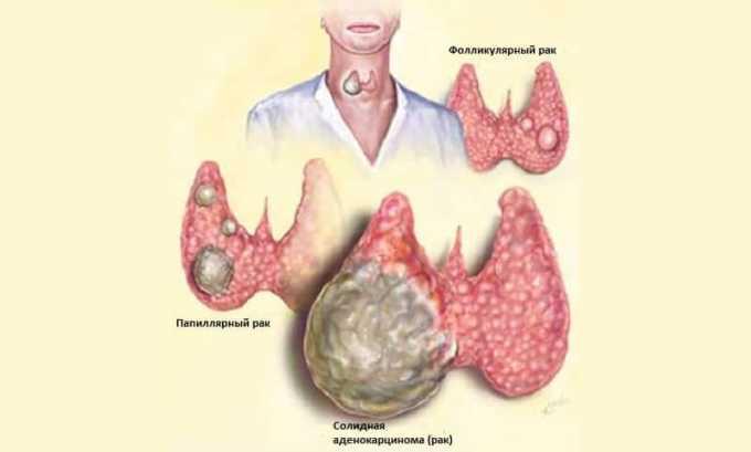 Рак щитовидной железы часто сопровождается гиперфункцией органа
