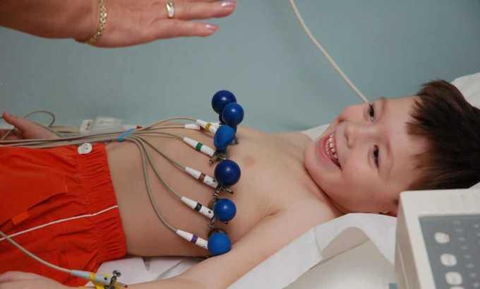 Симптомами гипертиреоза у ребенка, при котором ТТГ имеет низкий уровень, являются аритмия или тахикардия