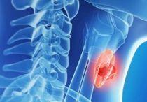 Причины, симптомы и профилактика гипофункции щитовидной железы