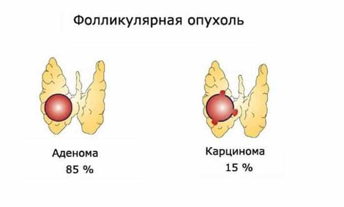 Биопсия может определить фолликулярную опухоль