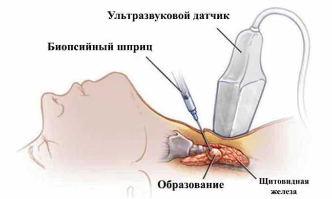 Пункция проводится при увеличении узлов в размерах более 1 см в диаметре. Дает возможность провести цитограмму и подтвердить морфологический диагноз