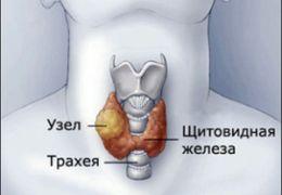 Опасность узлов в щитовидной железе
