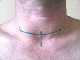 Специфика оперативного вмешательства при патологиях щитовидки