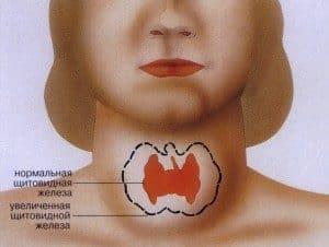 Пример увеличения щитовидки