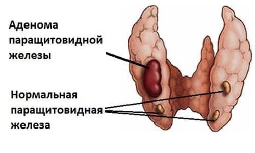 Аденома паращитовидной железы - это доброкачественная опухоль, образующаяся как у женщин, так и у мужчин, у детей и подростков она появляется редко
