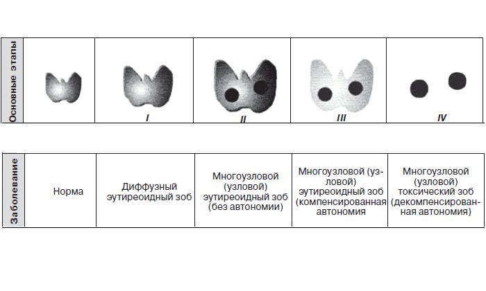 Для заболевания характерно образование одного или нескольких узлов, имеющих разные размеры, структуру и историю происхождения