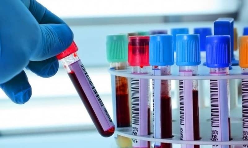 Перед биопсией надо сдать анализы и иметь с собой результаты клинического анализа крови и анализа крови на свертываемость