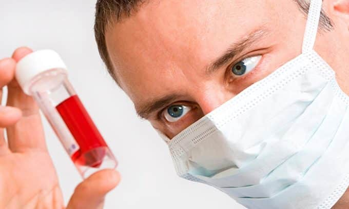 Для постановки окончательного диагноза больному назначается комплекс лабораторных исследований крови, которые помогают установить характер эндокринных нарушений