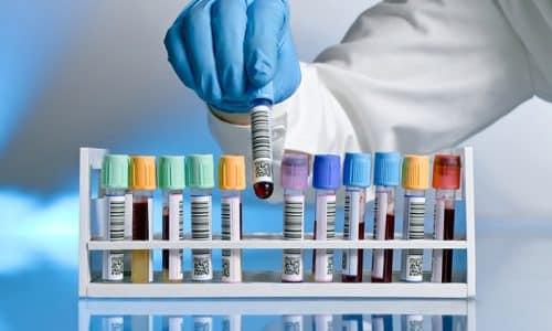 Анализ крови на кальцитонин - это проверка уровня гормона, за производство которого отвечает щитовидная железа
