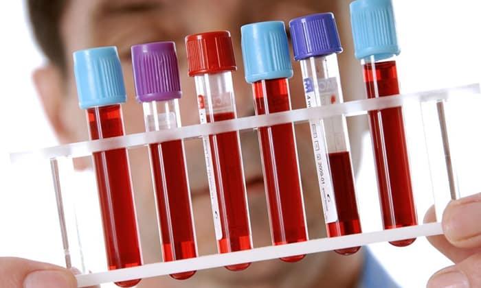 С целью диагностики состояния щитовидной железы назначаются следующие анализы: свободные гормоны Т3 и Т4; ТТГ; антитела к белку-тиреоглобулину