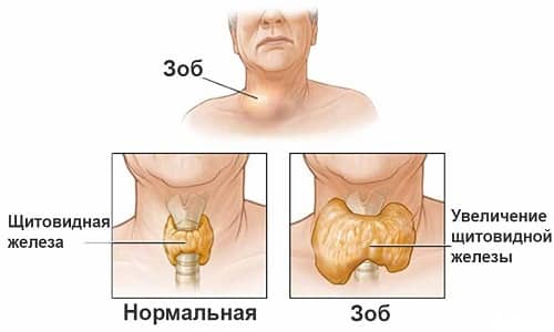 Йод участвует в выработке гормонов щитовидной железы, и его нехватка приводит к развитию эндемического зоба
