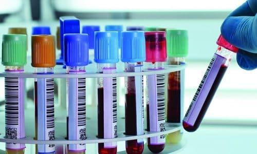 Анализы на уровень гормонов необходимы для обнаружения заболевания, ставшего причиной изменения размеров щитовидной железы