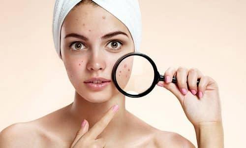 Одним из самых распространенных симптомов патологических образований в щитовидной железе является угревая сыпь на коже