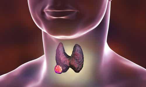 Развитие опухоли щитовидной железы также сопровождается увеличением органа в размерах, вследствие чего кадык сдавливается. Это и приводит к возникновению асимметрии и боли