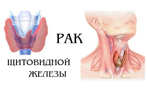 Папиллярный рак щитовидной железы — это наиболее распространенная разновидность онкологических заболеваний этого органа