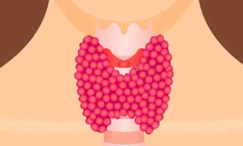 Коллоидный зоб представляет собой патологическое увеличение щитовидной железы