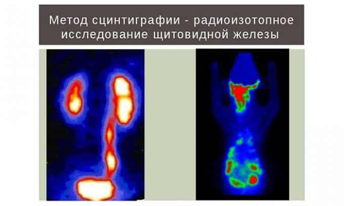 При подозрении на функциональные нарушения в работе щитовидной железы назначается радиоизотопное сканирование (сцинтиграфия)