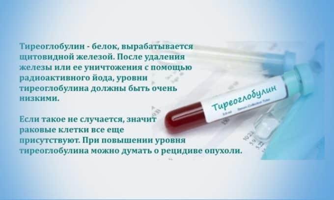 Высокий уровень тиреоглобулина служит сигналом о наличии опухолей и метастаз