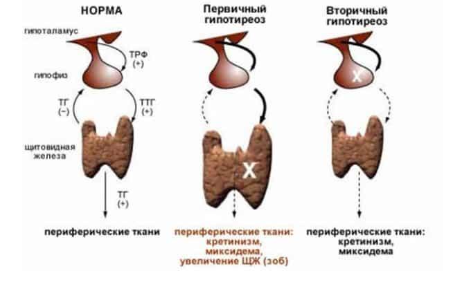 Развитие гипотиреоза приводит к уменьшению размеров щитовидной железы