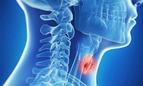 Число заболеваний щитовидной железы в наше время достаточно велико. Многие из них приводят к появлению в тканях железы новообразований (узлов), которые могут иметь доброкачественную и злокачественную природу