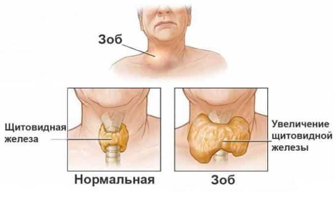 Если при УЗИ выявляется увеличение всей железы или только правой либо левой доли, то диагностируется токсический зоб
