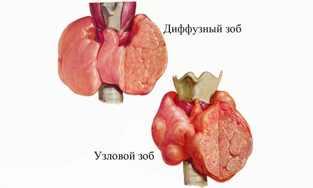 Отклонения в работе детской эндокринной системы могут спровоцировать увеличение щитовидной железы - образование зоба